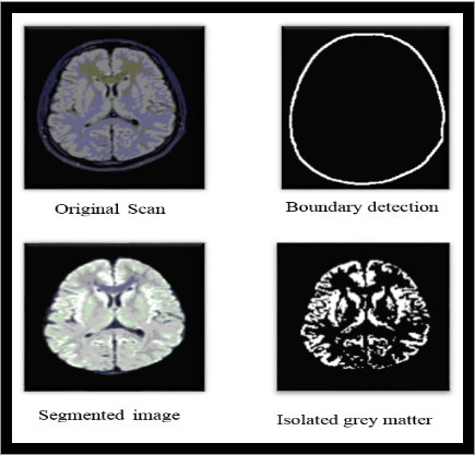 screenshot of isolation of grey area from MRI scan